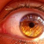 Viaje al interior de mi ojo